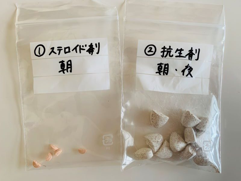 ステロイド剤・抗生剤